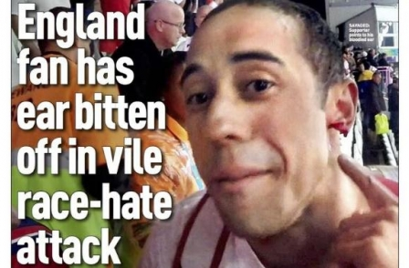 Sales boost for Sunday People after picture exclusive of ear-bite England fan in Brazil